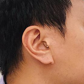 迷你隱密耳內型助聽器