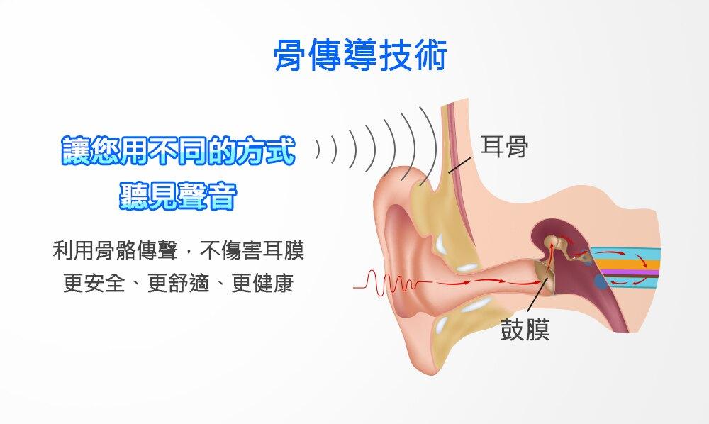 中耳炎適合骨導式助聽器