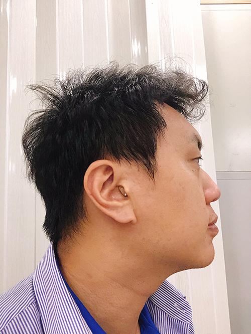 耳寶耳道型助聽器實際配戴照